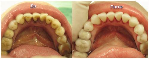 Что делать если жевательные зубы удалены 164